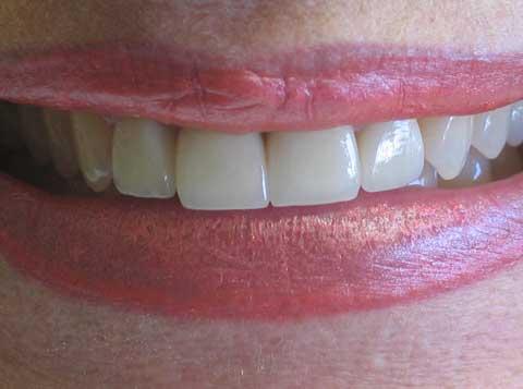 Caroline post-op crown work and veneer combination to fix broken teeth after fall