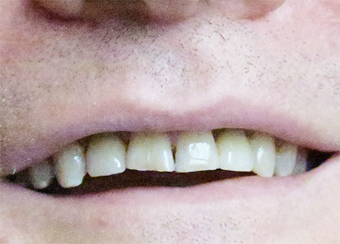 David Post-op Missing Teeth Replaced with Implants
