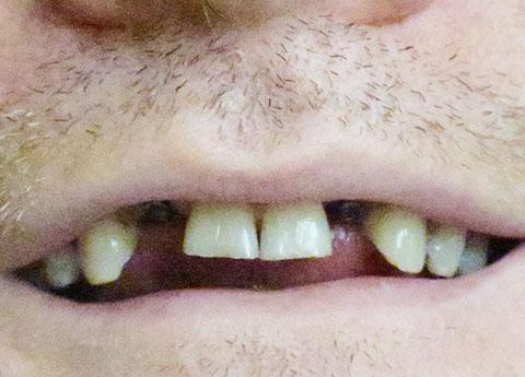 David Pre-Op Missing Teeth Replaced with Implants